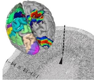 Image of the Julich-Brain Atlas - Credit: Forschungszentrum Juelich / Katrin Amunts
